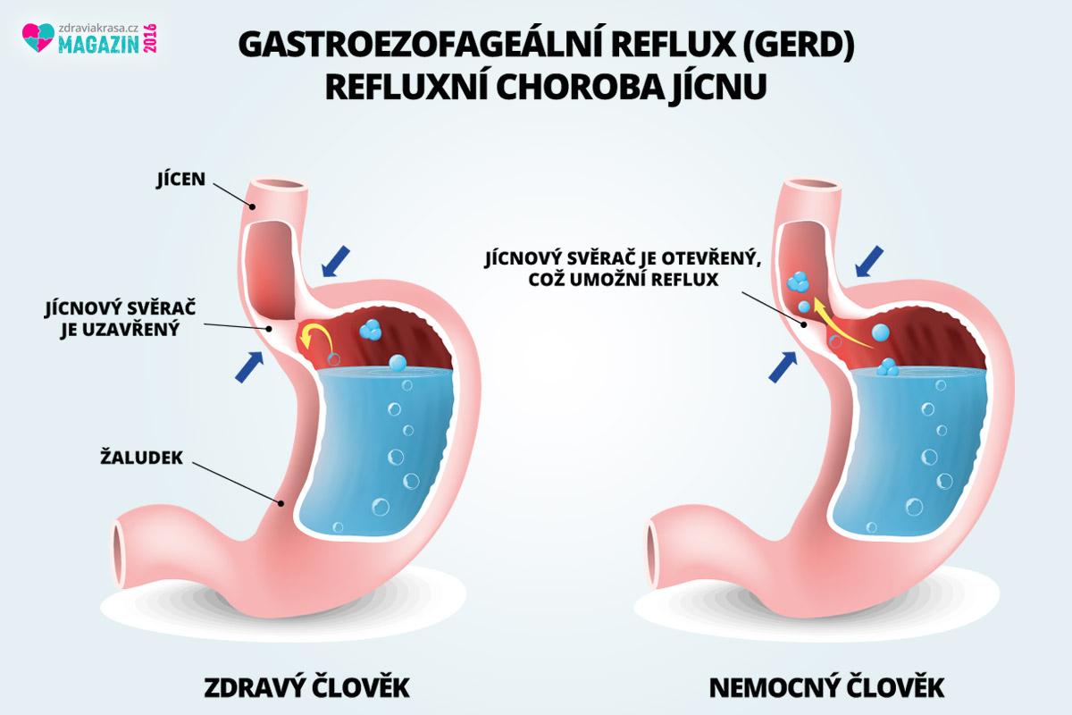 Reflux jícnu je způsobován zvýšeným tlakem, nezdravým životním stylem, cvičením po jídle, ale i stresem. Dá se úspěšně diagnostikovat i léčit.
