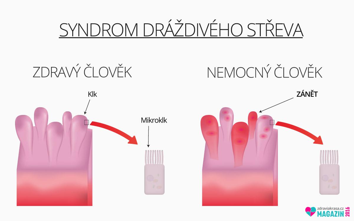Syndrom dráždivého střeva – infografika.
