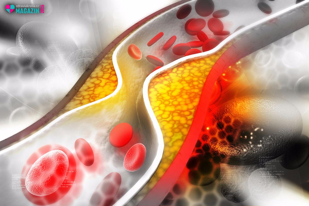 Takto se projevují problémy s cholesterolem v našem těle.