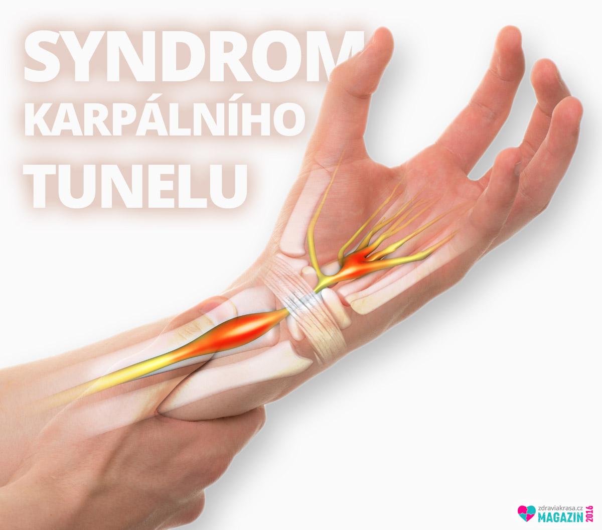 Syndrom karpálního tunelu umí znepříjemnit i znemožnit běžné denní domácí či pracovní činnosti.