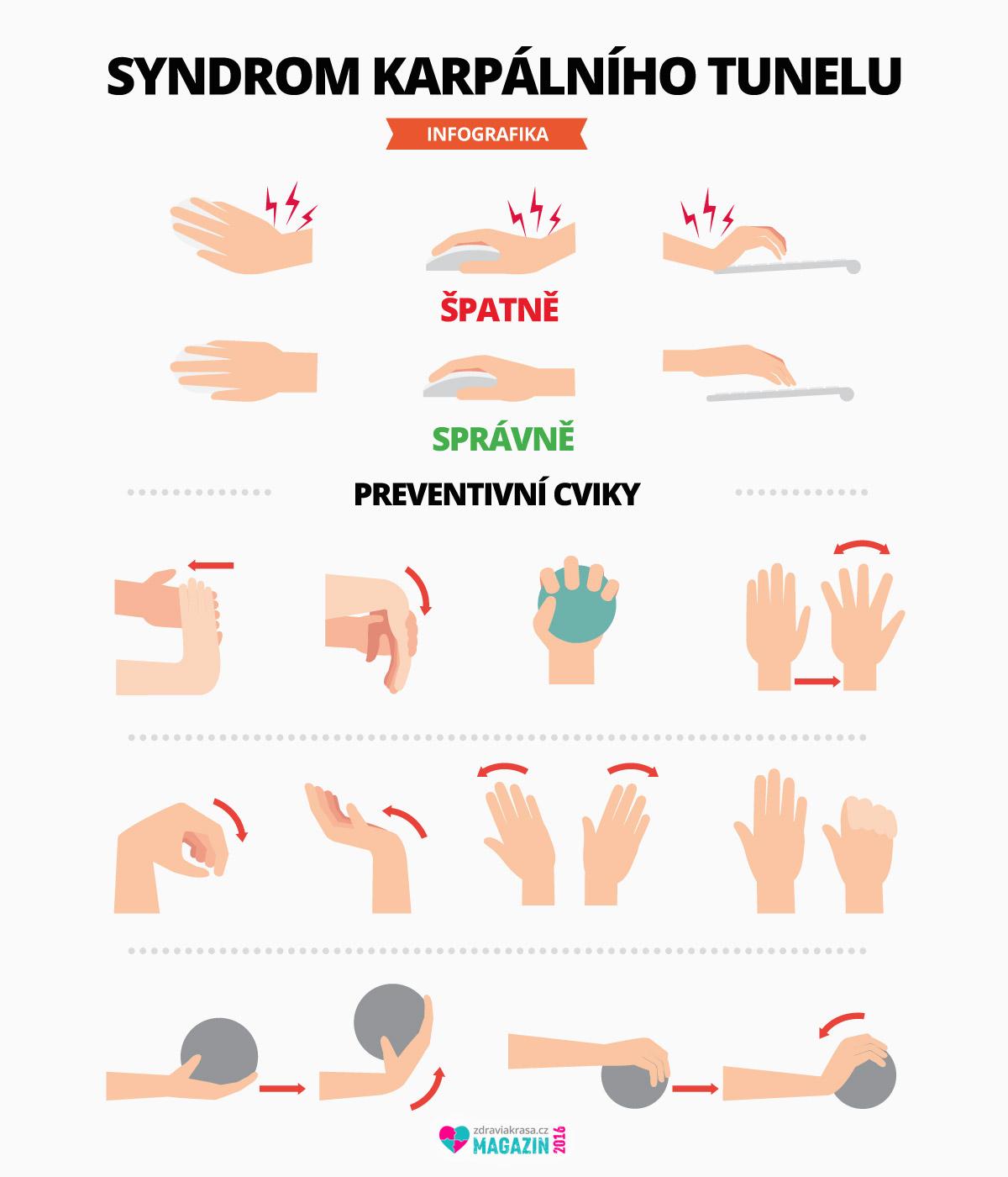Víte, že jednou z nejčastějších příčin vzniku syndromu karpálního tunelu je nesprávná ergonomie při práci s klávesnicí a myší? Podívejte se, které polohy jsou nesprávné a naučte se základní preventivní cviky, které vzniku problému zamezí.