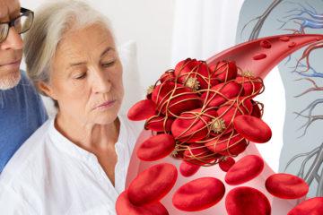 Časté mýty o nemocech srdce a cév říkají, že trombóza postihuje hlavně ženy a vyhýbá se sportovcům. Znáte další mýty? Doopravdy je to trochu jinak.