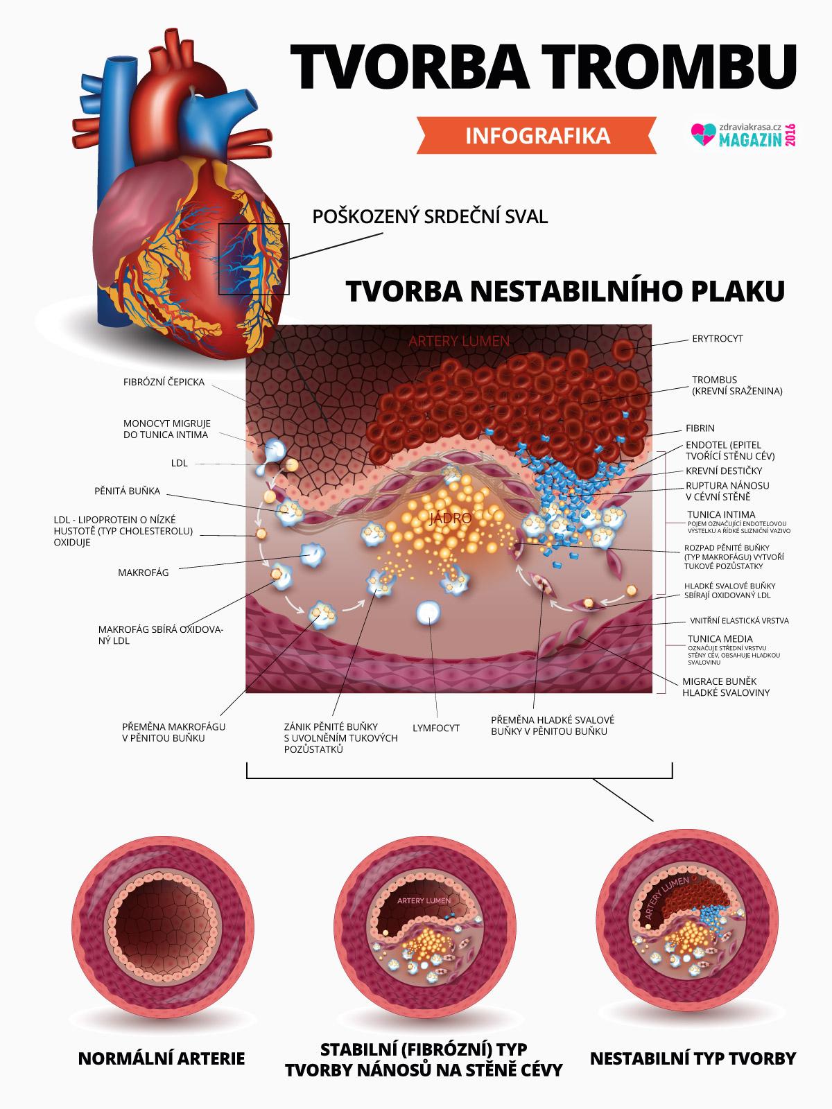Podívejte se, jak vzniká trombóza.
