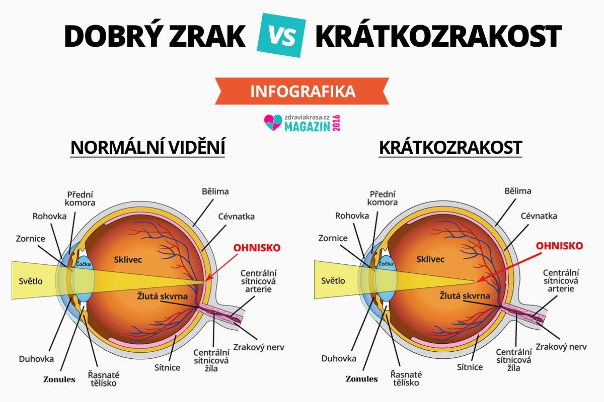 Když nás trápí krátkozrakost, tzn. že nevidíme do dálky.