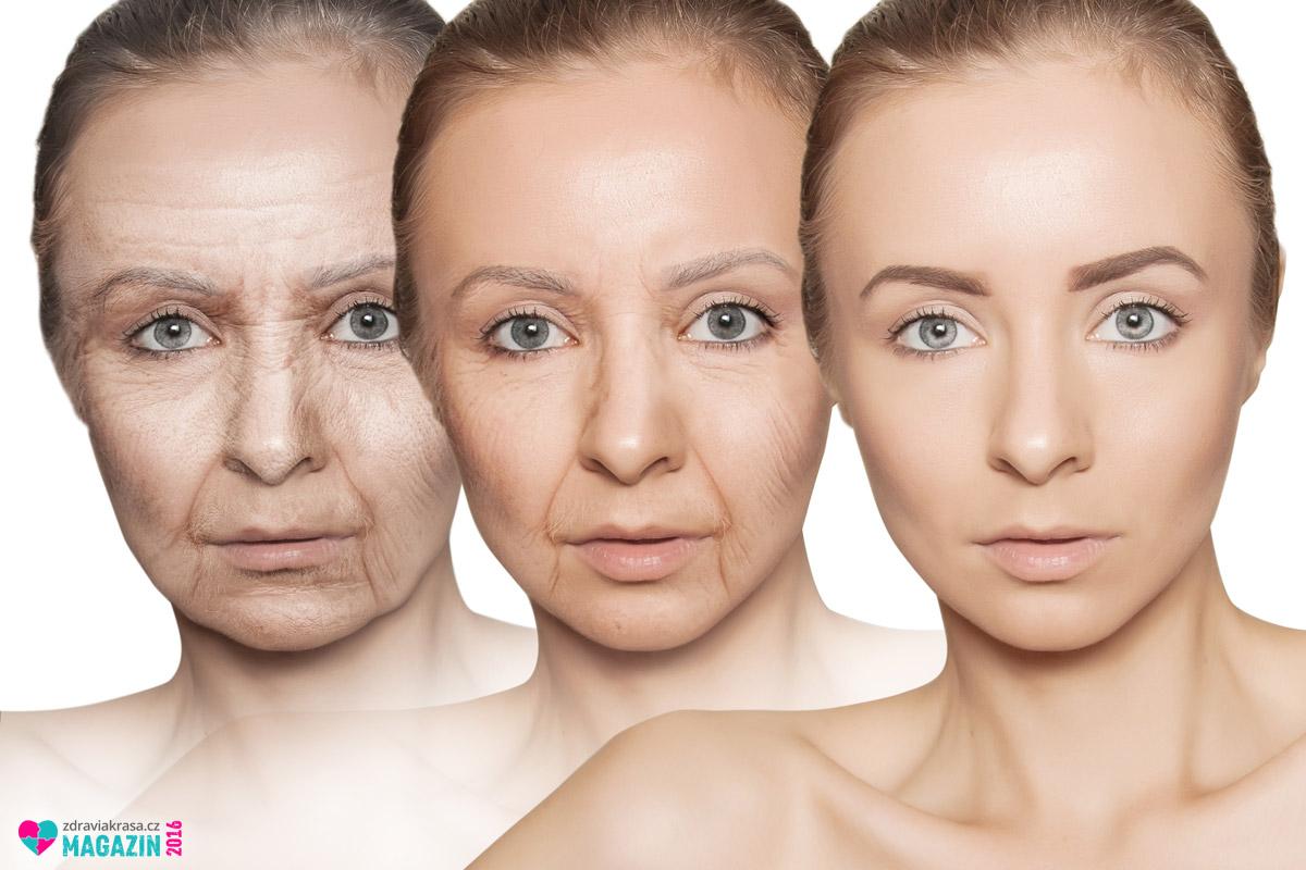 Anti-ageing medicína pomáhá zastavit a zvrátit projevy stárnutí. Začněte tím, co je vidět nejvíce. Zmírněte viditelnost vrásek.