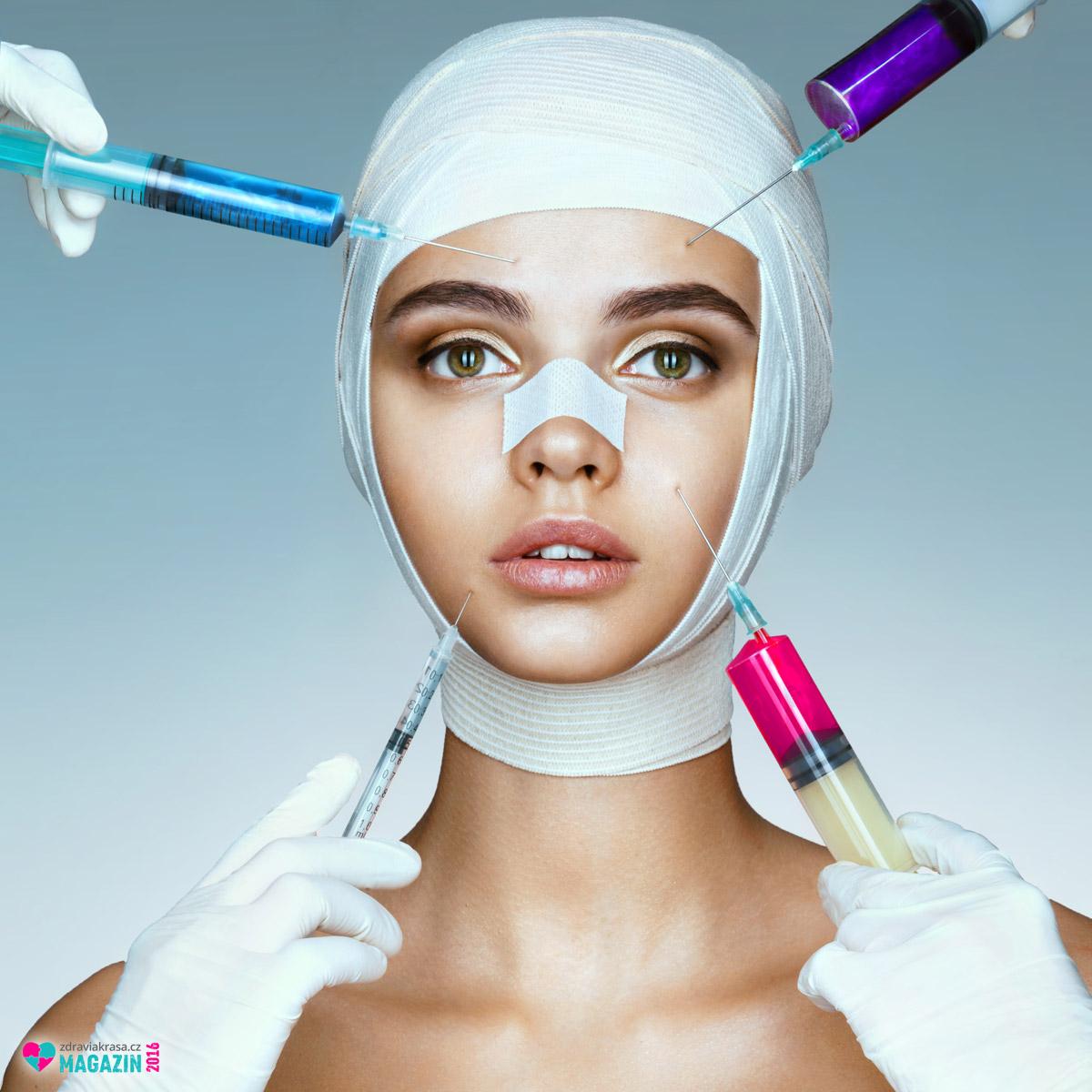Výplně botuloxinu se hodí pro odstranění vrásek kolem úst a nosu, pod očima a na čele.