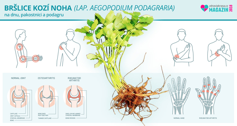 Bršlice kozí noha patří mezi jedlé plevele a zajímavé léčivé rostliny, které využijete když vás trápí dna, podagra, otoky, nebo záněty.