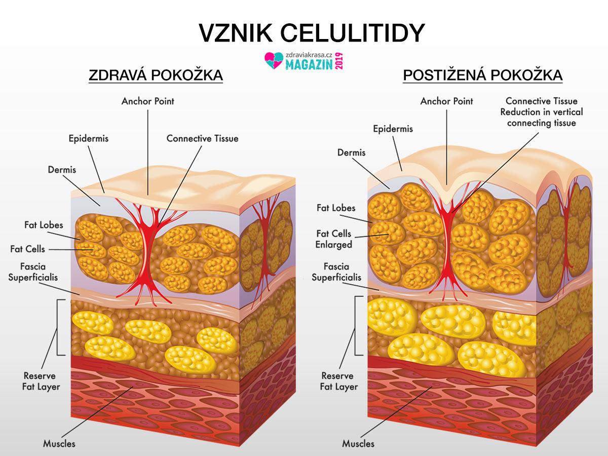 Celulitida nemusí být pouze estetickým problémem. Řada žen si stěžuje, že je pokožka kvůli celulitidě bolí.