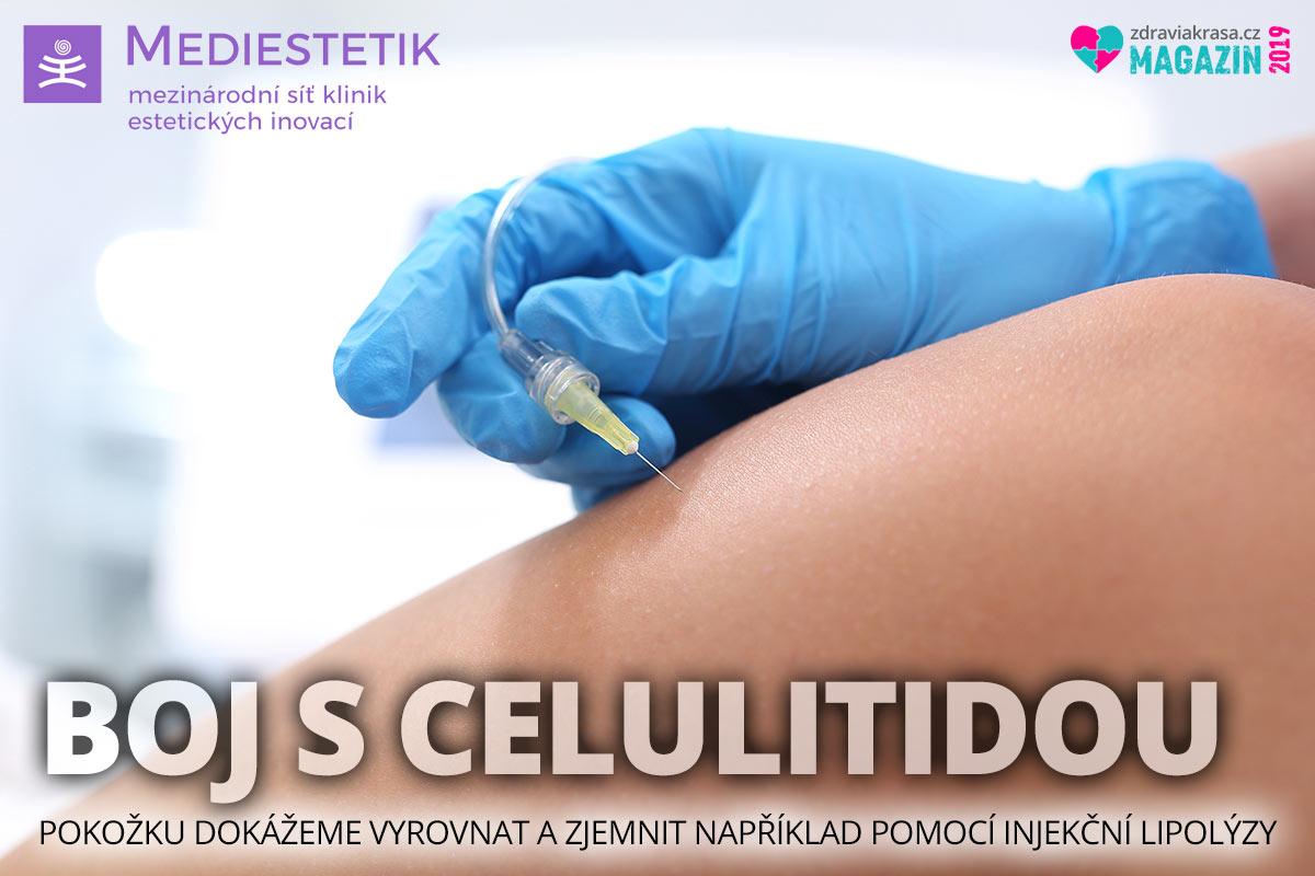 Injekční lipolýza je profesionální dermatologický zákrok, který umí rychle a účinně zmírnit příznaky celulitidy.