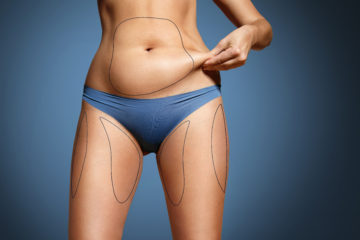 Potřebuje vaše postava vylepšit? Zkuste jinou liposukci. Laserová liposukce SlimLipo se hodí k odstranění tuku, zmírní celulitidu i strie. Je šetrná a účinná.