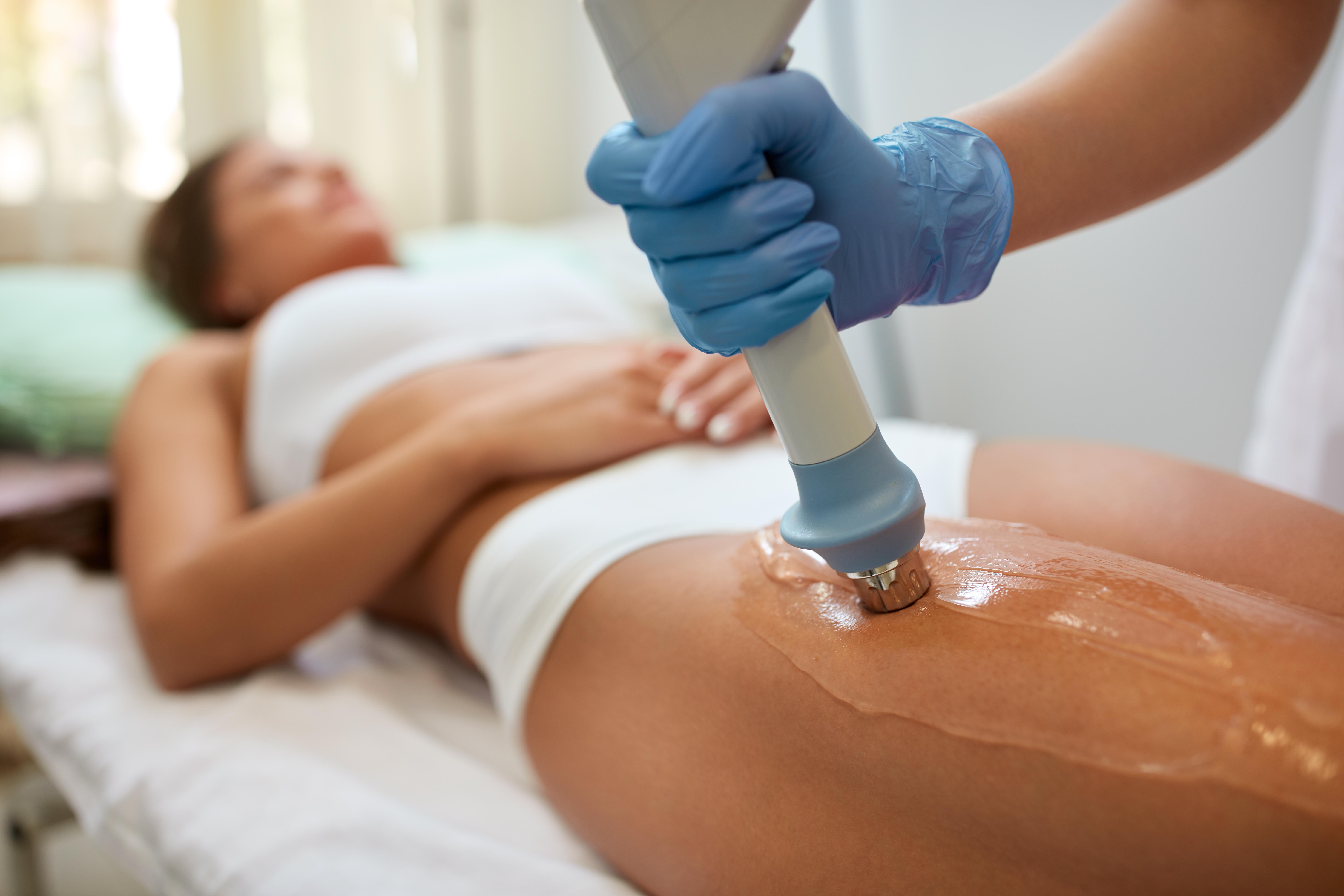 Strie, celulitida, přebytečný tuk i povislá kůže. Ne každá metoda umí tyto problémy řešit tak šetrně a současně viditelně jako laserová liposukce SlimLipo.