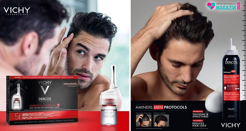 Vypadávání vlasů u mužů lze zastavit či zpomalit. Je zapotřebí ale začít s předstihem.